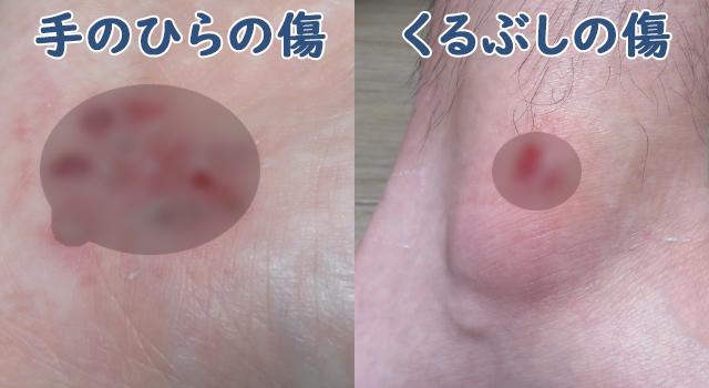 自転車で転倒してできた手のひらとくるぶしのすり傷