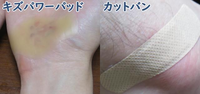 手のすり傷はキズパワーパッド、足のすり傷はカットバンで治療