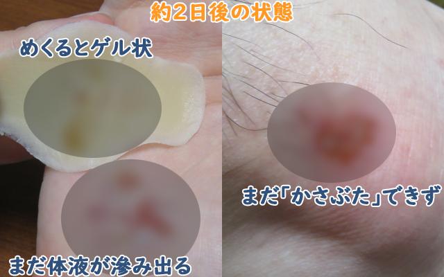 キズパワーパッドとカットバンで約2日治療した傷の経過